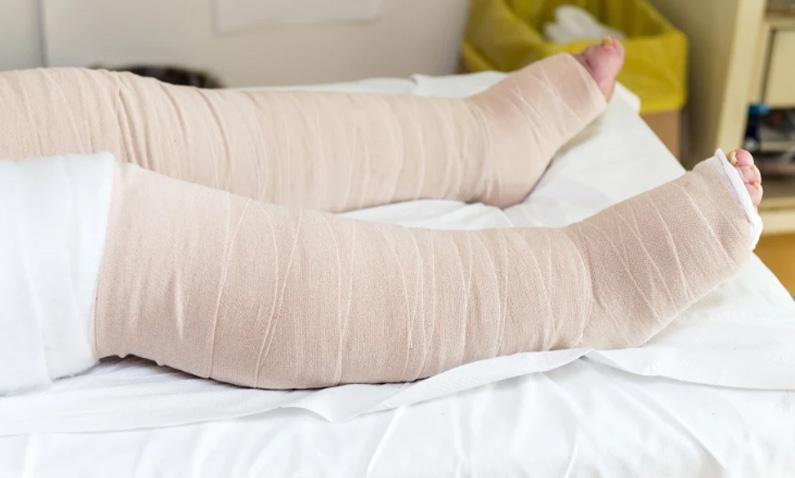 How to Manage Lipedema & Lipo Lymphedema with Compression Garments – Compression Garments for Lipedema