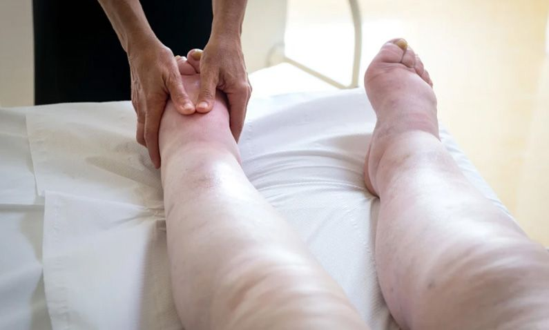 SIMPLE DIY Lymph Drainage | Reflexology Point for Lymphedema, Swelling and Edema